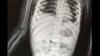 3 साल की बच्ची के पेट में लोहे के सात पिन, एक्स-रे देख उड़े डॉक्टरों के होश