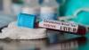 COVID-19 के प्रतापगढ़ में 21 और नए मिले संक्रमित, स्वास्थ्य विभाग में मची खलबली