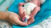 ट्यूमर समझ दो माह के बच्चे का किया ऑपरेशन, निकला अविकसित भ्रूण