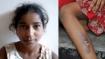 सौतेली मां ने 12 साल की बेटी के मुंह में कपड़ा ठूंसकर प्राइवेट पाटर्स को गर्म संडासी से दागा