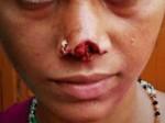 शाहजहांपुर: झगड़ा हुआ तो पति ने दांतों से पत्नी की नाक को काट डाला