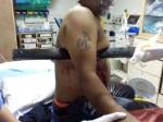 गुजरात: शरीर में घुस गई 4 फीट लंबी रेलिंग, डॉक्टरों ने बचा ली जान