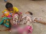 अस्पताल ने धक्के मार कर निकाला, महिला ने बीच सड़क पर दिया बच्चे को जन्म