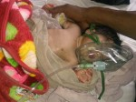 यूपी: अगस्त में बहराइच में 60, बरेली में 38 बच्चों की मौत