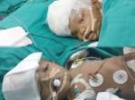 पहली बार हुआ ऐसा कारनामा, AIIMS के डॉक्टरों ने जुड़वा बच्चों के दिमाग को सर्जरी से किया अलग