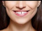 Samudrik Shastra: जानें क्या कहता है दांतों के बीच का गैप?