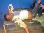 बिहार: हड्डी टूटने पर डॉक्टर ने प्लास्टर नहीं कार्टन बांधा, दर्द से कराहता रहा मरीज
