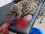शर्मनाक: इलाज के दौरान डॉक्टरों ने दोनों टांगों के बीच रख दिया मरीज का कटा हुआ पैर