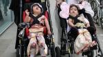 55 घंटे और 3 ऑपरेशन के बाद अलग की गईं दिमाग से आपस में जुड़ी दो साल की जुड़वा बहनें