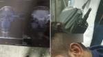 दिल्ली हिंसा: सिर में घुसी ड्रिल मशीन के साथ GTB अस्पताल पहुंचा शख्स, डॉक्टरों ने ऐसे बचाई जान