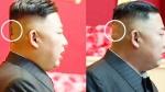 किम जोंग उन के सिर में चोट के निशान, क्या बेहद बीमार हैं नॉर्थ कोरिया के तानाशाह?