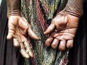 अजीब परंपरा: यहां घर के किसी सदस्य की मौत पर काट देते हैं महिलाओं की उंगलियां