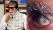 अमिताभ की आंख में बना 'काला धब्बा', डॉक्टर से मिलने के बाद लिखी इमोशनल पोस्ट