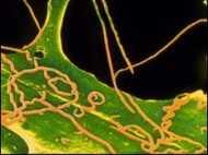 यौन रोगों से संक्रमित किया, माफ़ी मांगी