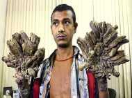दोबारा बीमार हुआ बांग्लादेशी 'ट्री-मैन', हाथों में उगने लगी पेड़ की छाल