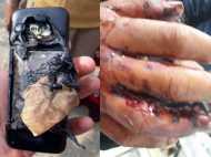 गेम खेलने के दौरान मोबाइल फोन की बैटरी में धमाका, 12 साल का बच्चा हुआ जख्मी