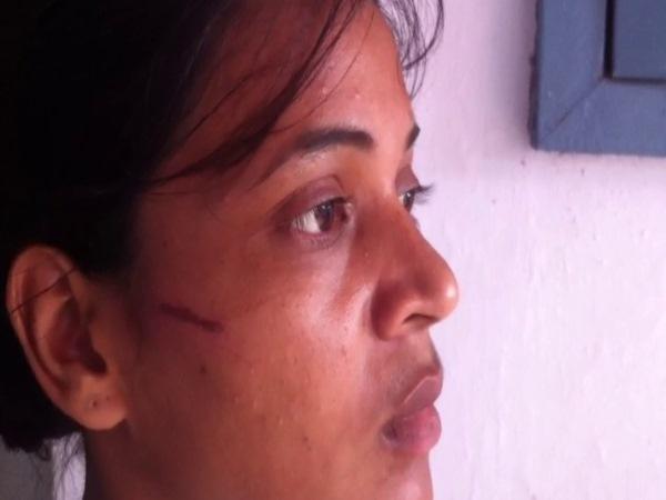 <strong>Read Also: VIDEO: छात्रा ने दिखाई दिलेरी, दरिंदों से लड़कर बचाई जान</strong>