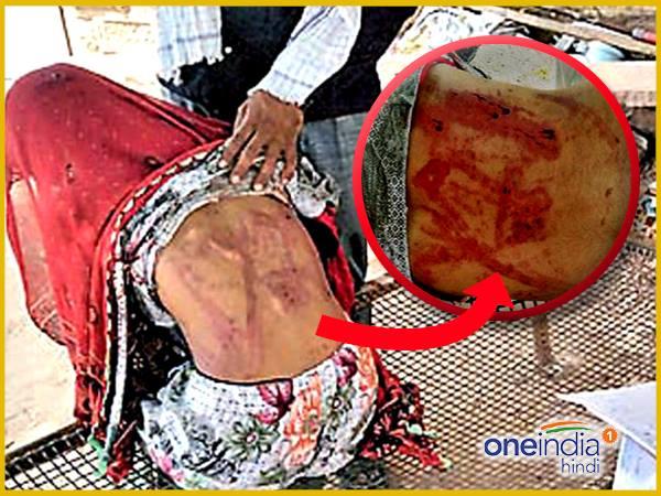 सोने के लिए पति ने ढहाया सितम, जंजीर और लाठी से मार किया अधमरा