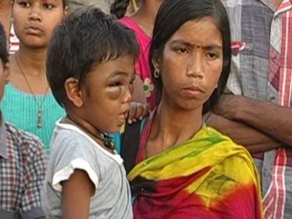पुणे के स्कूल में टीचर ने नर्सरी के बच्चे को बेरहमी से पीटा, पुलिस ने मामला दर्ज किया