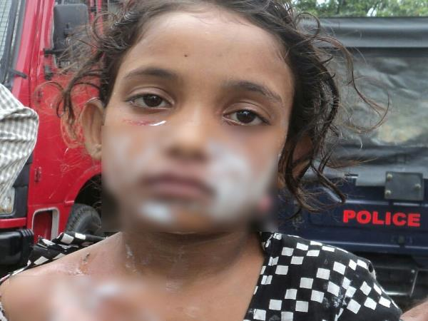 Shopkeeper burn Girl Child for do not take coin as return