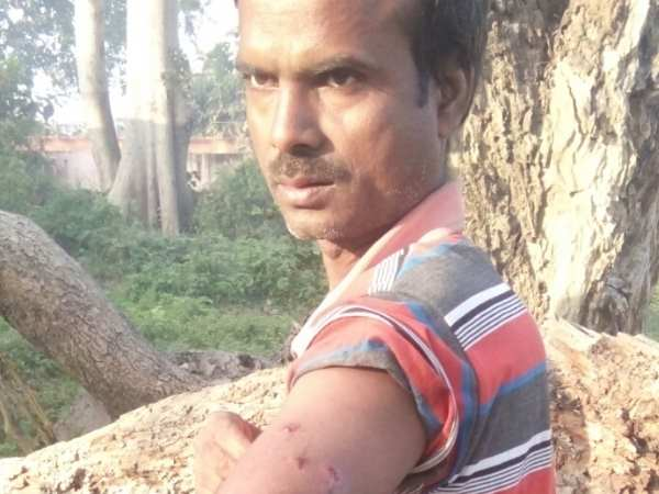 Santosh fight with leopard in Bahraich, Uttar Pradesh