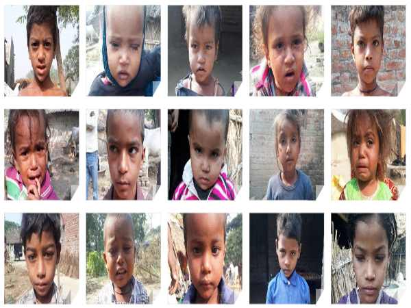 Measles become curse of a village in Bahraich, 40 children ill