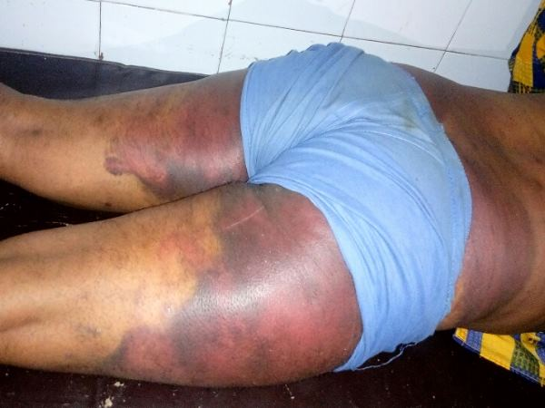 shahjahanpur police beaten a man very badly