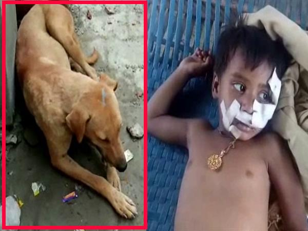 hardoi dog bite a 4 years old girl very badly