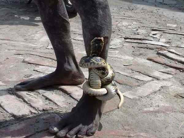 A snake trapped in leg of man form Bihar