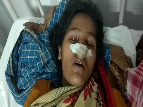 SHAHJAHANPUR husband cuts his wifes nose