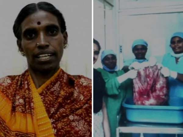 Coimbatore: Doctors remove 33.5 kg ovarian tumor, eye on world record