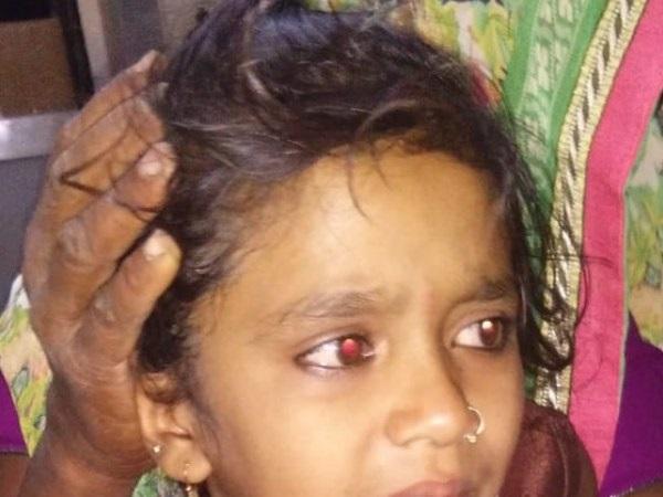 गुजरात: गांवों में घुसकर बच्चियों को निशाना बना रहा तेंदुआ, इस बार 7 साल की मासूम पर झपटा