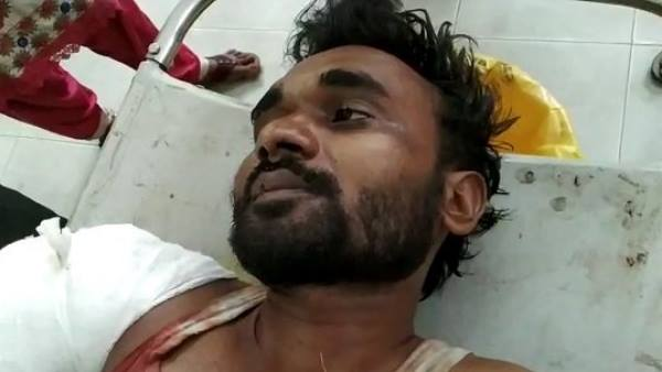 A man beaten and two hands chopped by train