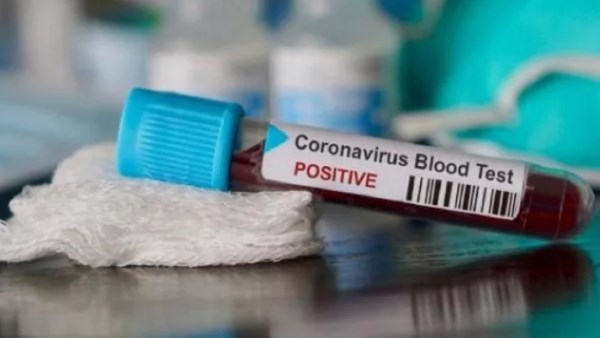 47 year old man has tested positive for covid 19 in uttarakhand dehradun