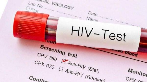 इसे भी पढ़ें- World AIDS Vaccine Day: 40 साल में भी नहीं मिला एड्स का इलाज, खतरनाक होती जा रही बीमारी