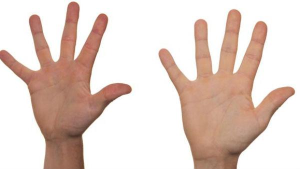 यह पढ़ें: Palmistry:हथेली में छुपे हैं संक्रामक रोग के संकेत