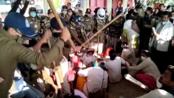 भोपाल : 3 माह बाद नौकरी से हटाने पर प्रदर्शन कर रहे कोरोना योद्धाओं पर लाठीचार्ज, 15 घायल
