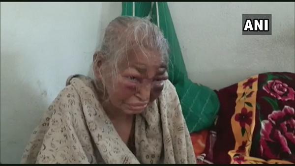 पश्चिम बंगाल: उत्तर 24 परगना में BJP कार्यकर्ता की मां के ऊपर हमला, TMC कार्यकर्ताओं पर लगा आरोप