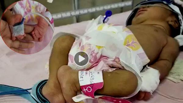 मप्र के हरदा में जन्मी उल्टे पैरों वाली बच्ची, बेटी के पैर देखते ही लावारिस छोड़कर चले गए परिजन, देखें Video