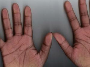 कौन-सी बीमारी होगी आपको, हाथों की रेखाएं ये भी बताती हैं