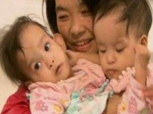 ऑपरेशन के बाद पेट से जुड़ी जुड़वा बच्चियों को मिली नई जिंदगी