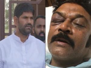 कर्नाटक: साथी विधायक पर हमला करने वाले कांग्रेस एमएलए जेएन गणेश पार्टी से निलंबित, हत्या के प्रयास में एफआईआर दर्ज